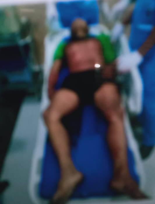 Becaknya Tak Selesai Diperbaiki, Saat Ditagih, Tukang Becak Ini Malah Dibunuh di Johor