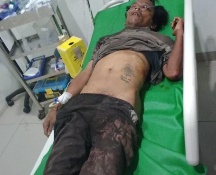Tanpa Identitas, Korban Lakalantas Ditemukan Tewas di Jalan Gatot Subroto