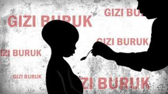 Masalah Gizi di Indonesia Jadi Faktor Penghambat Pembangunan Nasional