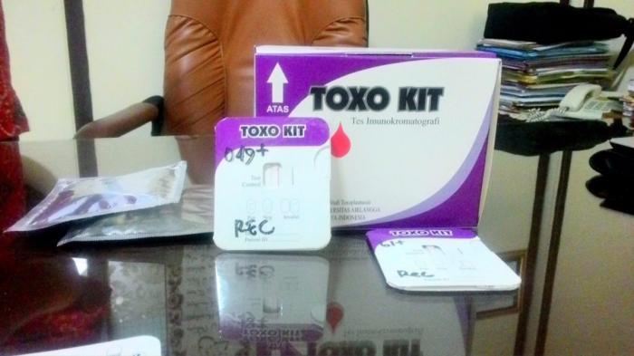 Kembangkan Toxo Kit, Peneliti UNAIR Dapatkan Generasi Baru Uji Toksoplasma