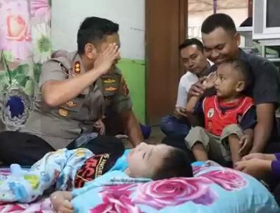 Berikan Tali Asih, Kapolres Simalungun Sambangi Anak Penderita Saraf Motorik di Bosar Maligas