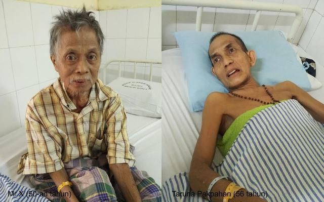 Dua Pasien Mr X Masih Dirawat di RSUP H Adam Malik, Salah Satunya Hampir Setahun