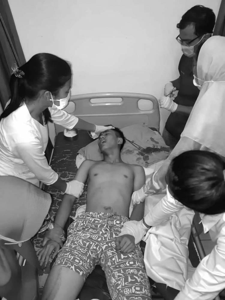 Geng Motor Lempari Remaja Pengendara Motor Hingga Kepala Pecah Saat Melintas dekat Terminal Amplas Medan