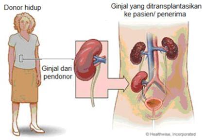 Di Sumut, Program Transplantasi Ginjal Terhambat Minimnya Pendonor
